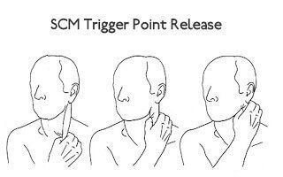 Trigger Points In Neck Cause Dizziness |